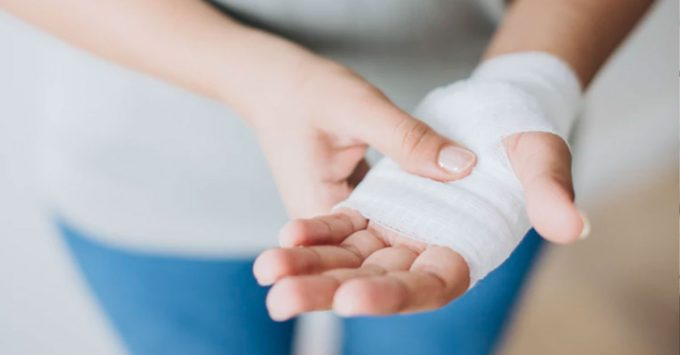 Woman holding injured hand wrapped in bandages